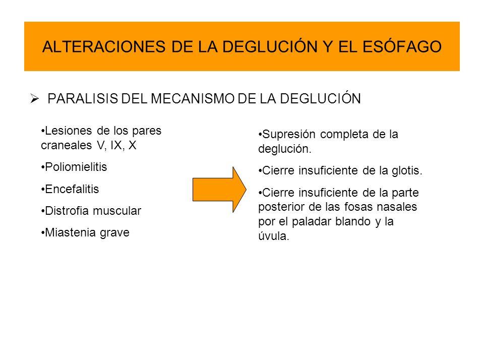 ALTERACIONES DE LA DEGLUCIÓN Y EL ESÓFAGO