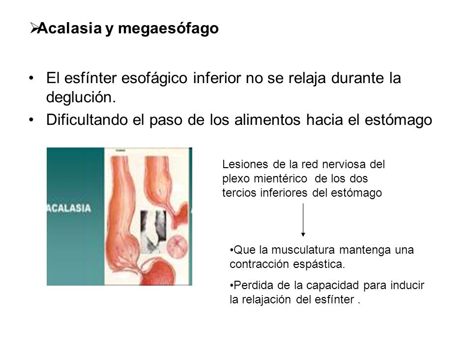 Acalasia y megaesófago