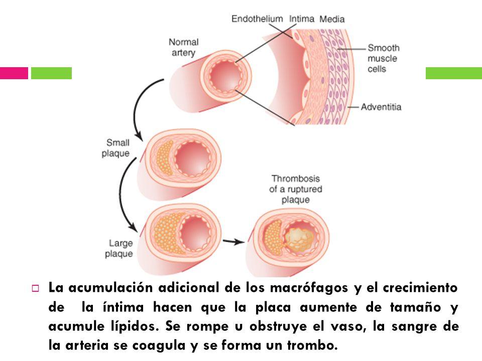La acumulación adicional de los macrófagos y el crecimiento de la íntima hacen que la placa aumente de tamaño y acumule lípidos.