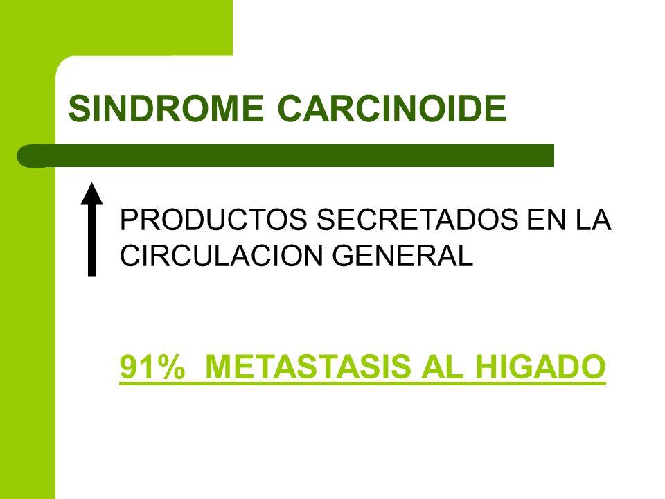 SINDROME CARCINOIDE 91% METASTASIS AL HIGADO