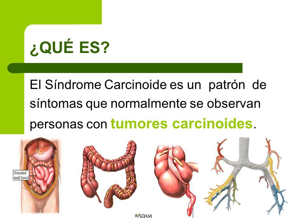 ¿QUÉ ES El Síndrome Carcinoide es un patrón de