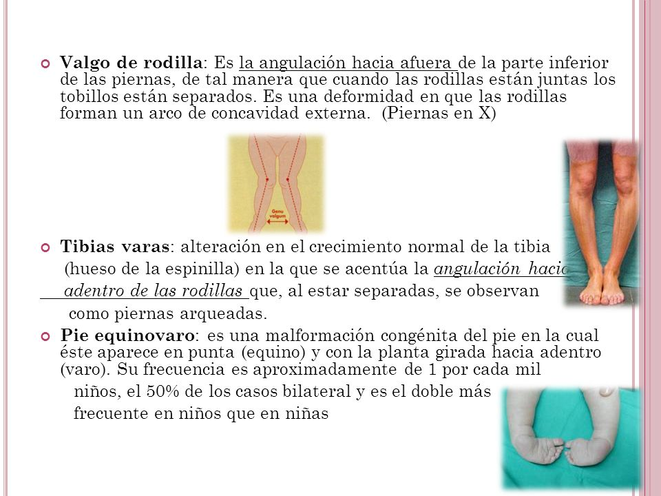 Valgo de rodilla: Es la angulación hacia afuera de la parte inferior de las piernas, de tal manera que cuando las rodillas están juntas los tobillos están separados. Es una deformidad en que las rodillas forman un arco de concavidad externa. (Piernas en X)