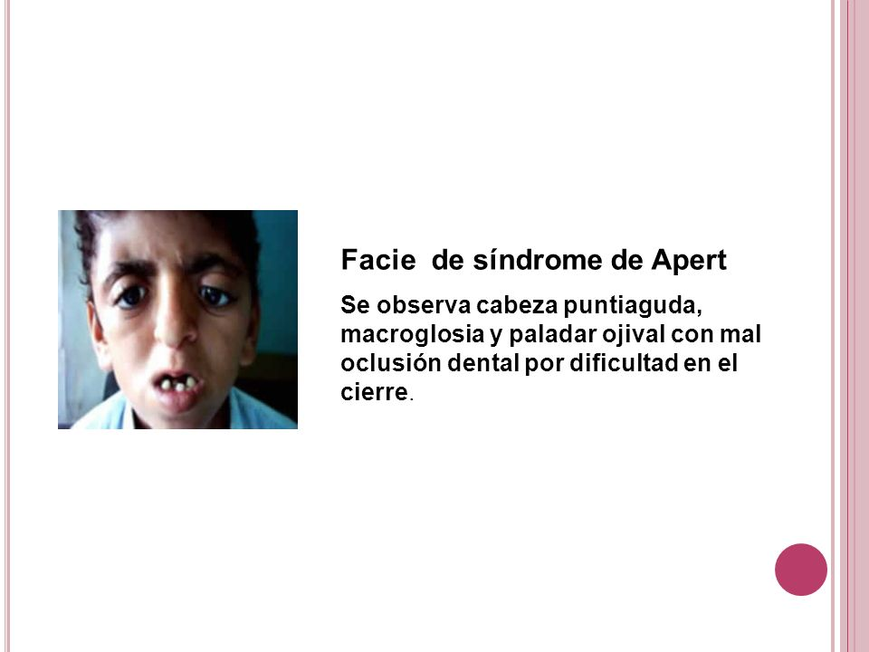 Facie de síndrome de Apert