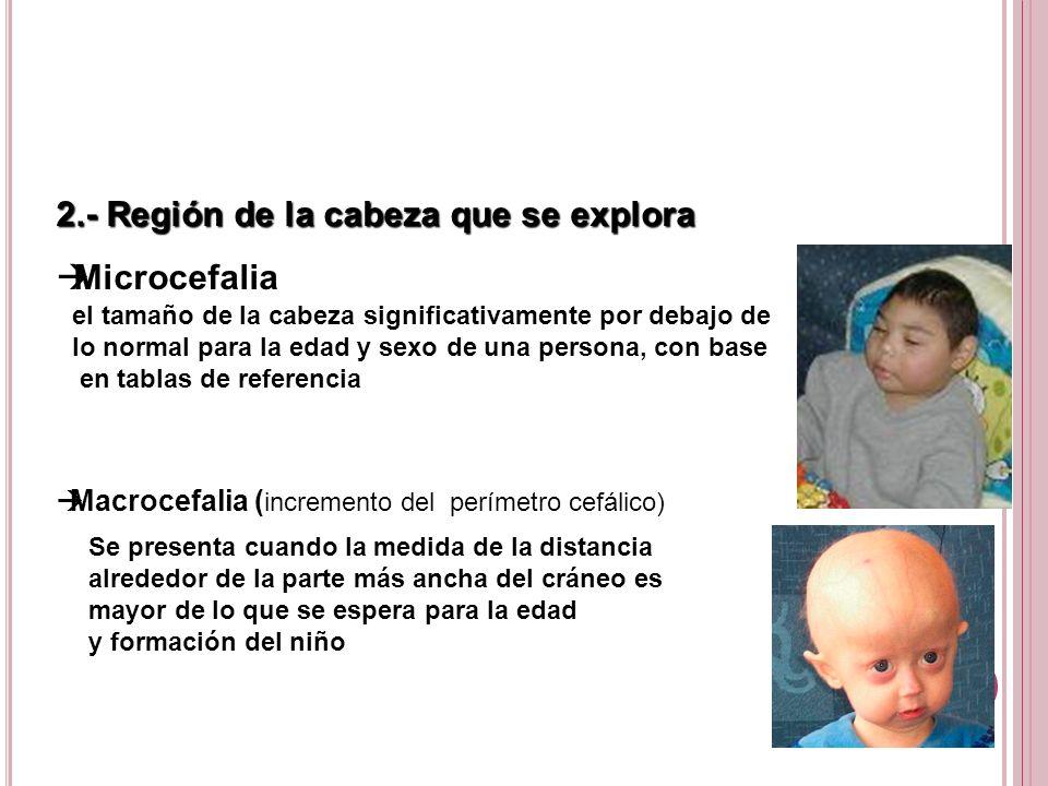 2.- Región de la cabeza que se explora Microcefalia