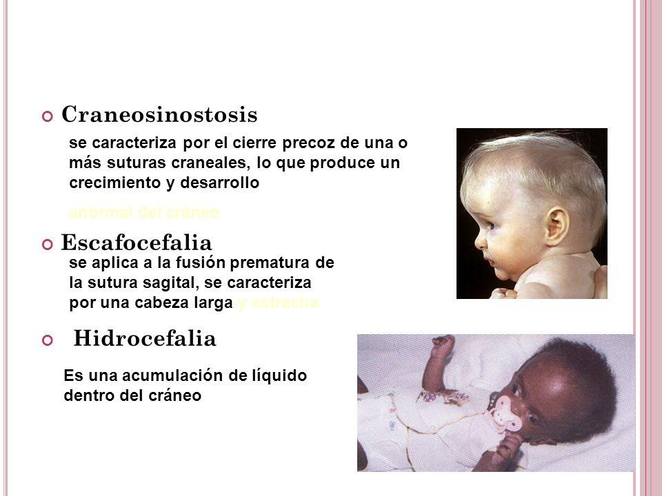 Craneosinostosis Escafocefalia Hidrocefalia