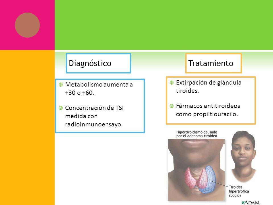 Diagnóstico Tratamiento Extirpación de glándula tiroides.