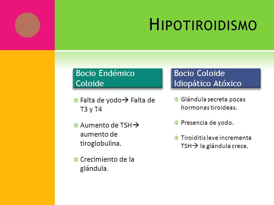 Hipotiroidismo Bocio Endémico Coloide Bocio Coloide Idiopático Atóxico