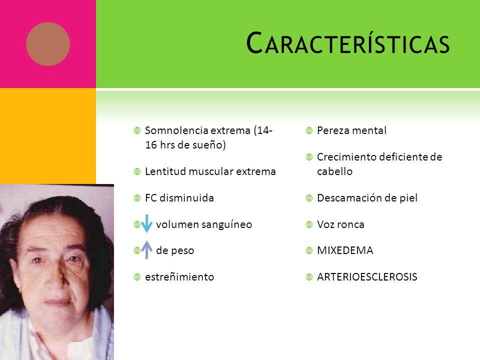 Características Somnolencia extrema (14- 16 hrs de sueño)