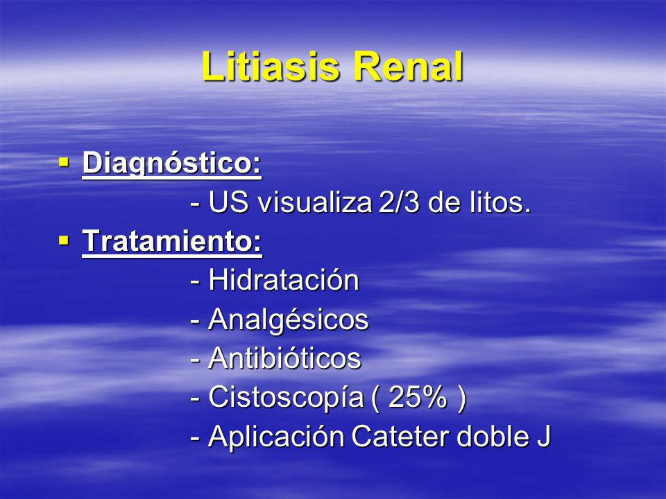 Litiasis Renal Diagnóstico: - US visualiza 2/3 de litos. Tratamiento: