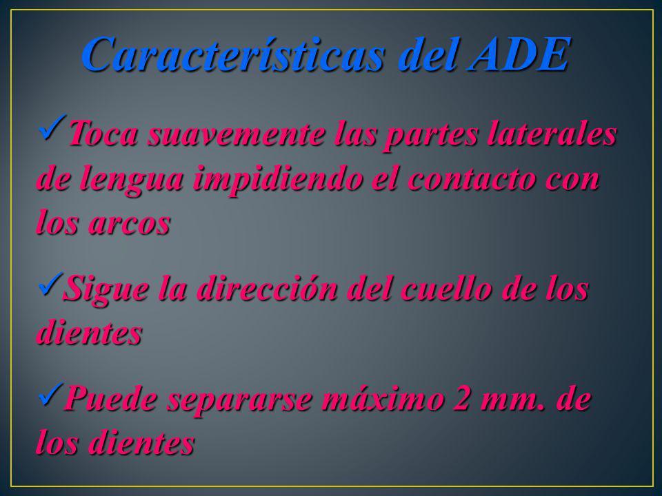 Características del ADE