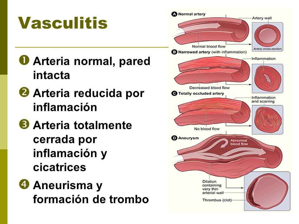 Vasculitis Arteria normal, pared intacta