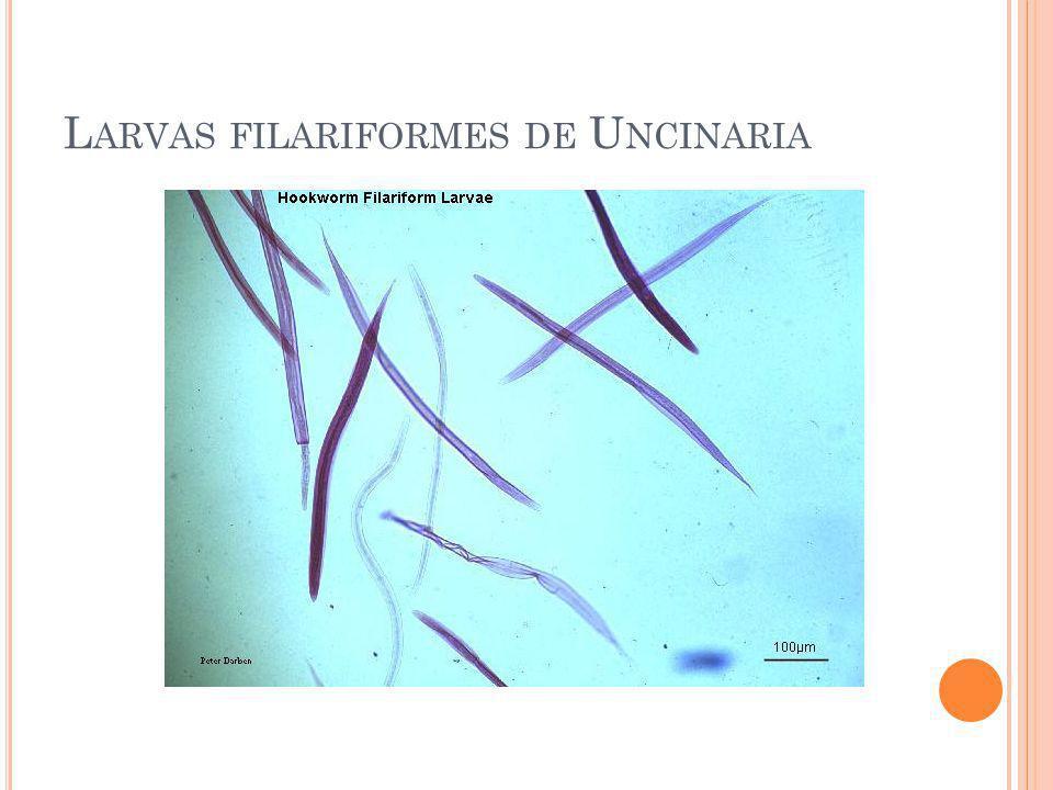 Larvas filariformes de Uncinaria