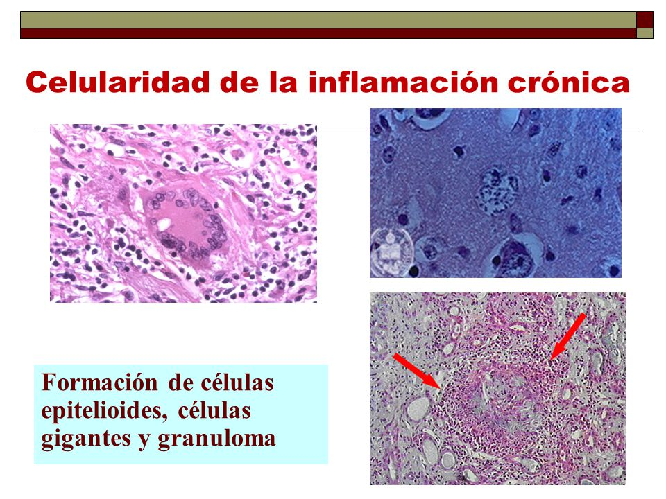 Celularidad de la inflamación crónica