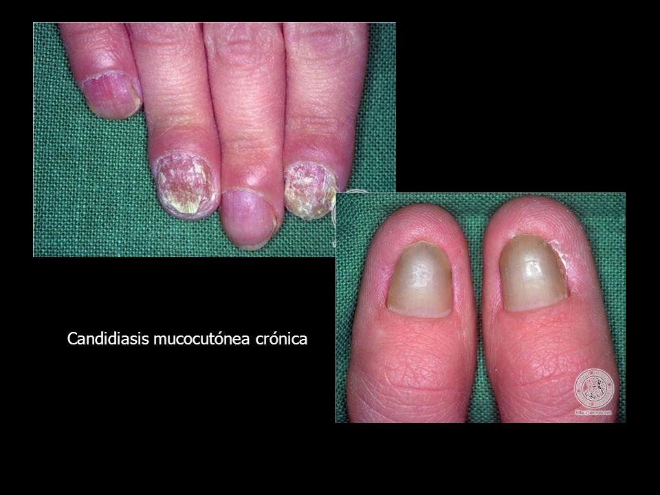 Candidiasis mucocutónea crónica