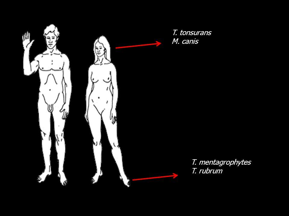 T. tonsurans M. canis T. mentagrophytes T. rubrum