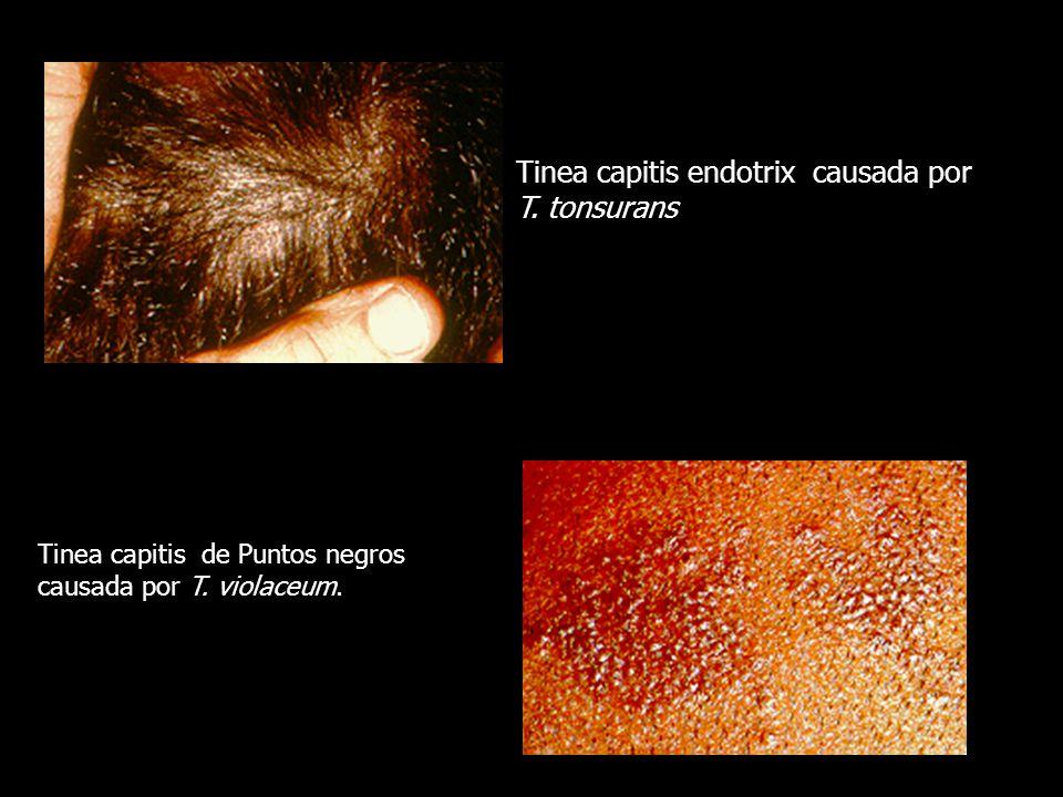 Tinea capitis endotrix causada por T. tonsurans