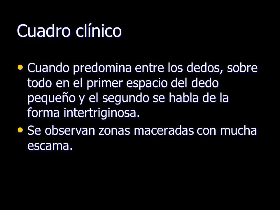 Cuadro clínico Cuando predomina entre los dedos, sobre todo en el primer espacio del dedo pequeño y el segundo se habla de la forma intertriginosa.