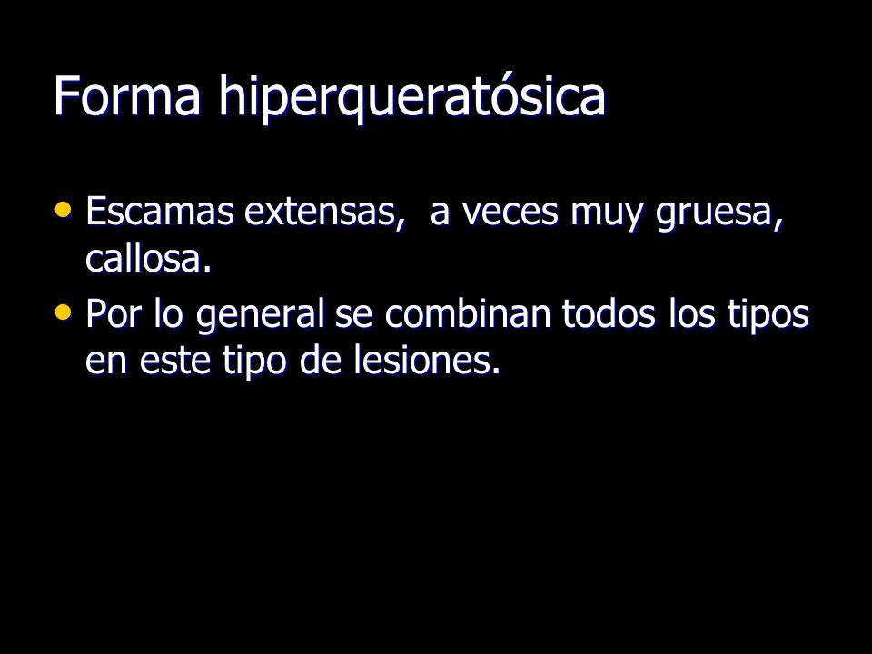 Forma hiperqueratósica