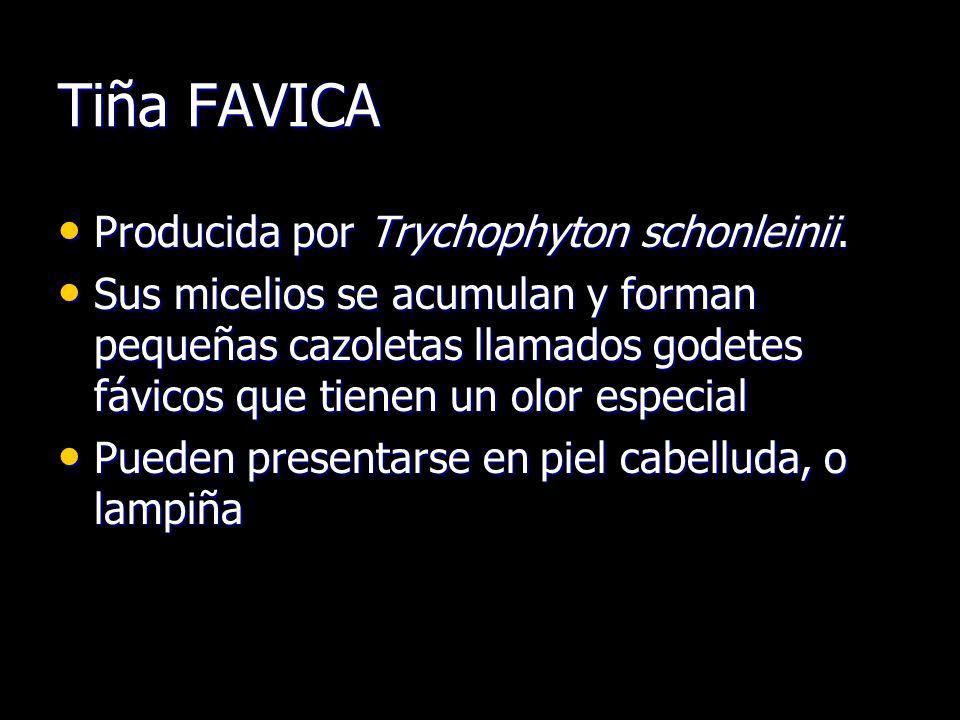 Tiña FAVICA Producida por Trychophyton schonleinii.