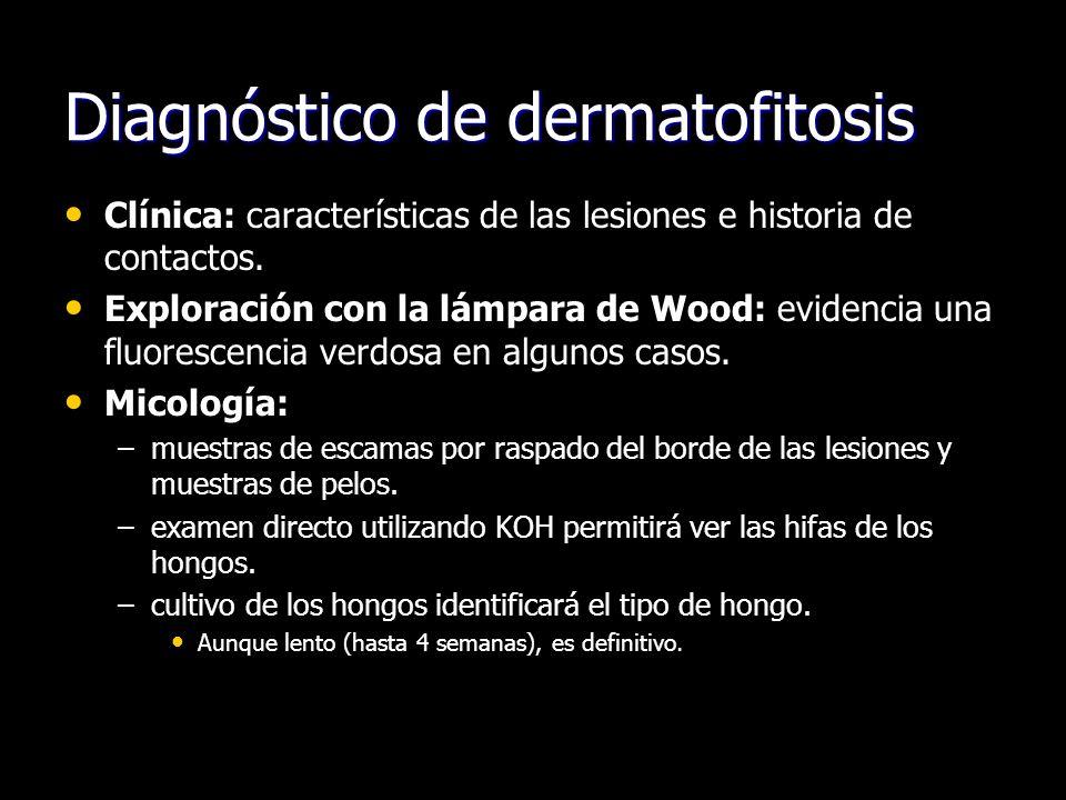 Diagnóstico de dermatofitosis