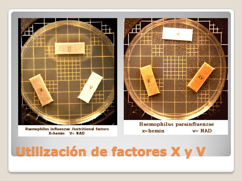 Utilización de factores X y V