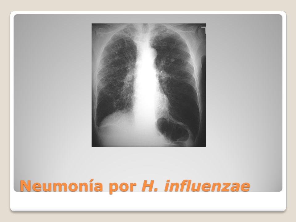 Neumonía por H. influenzae