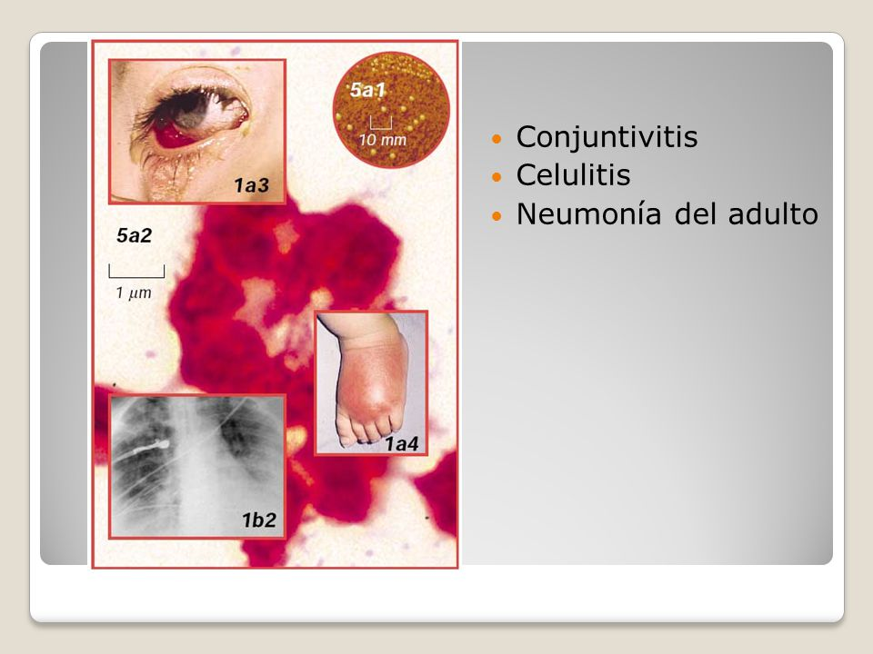 Conjuntivitis Celulitis Neumonía del adulto