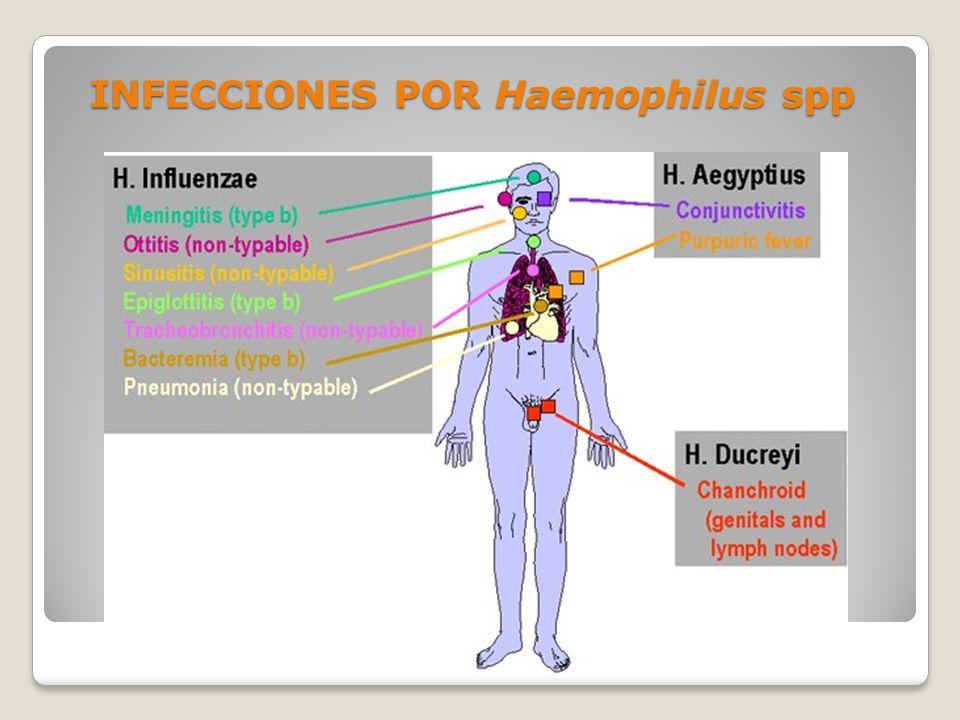 INFECCIONES POR Haemophilus spp