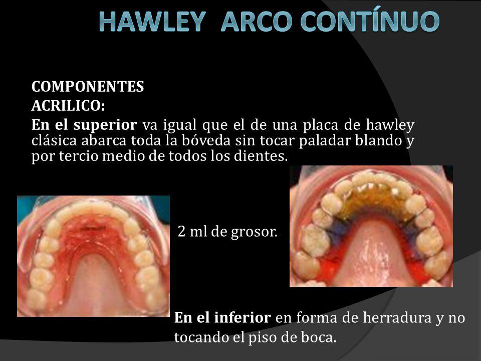 HAWLEY ARCO CONTÍNUO COMPONENTES ACRILICO: