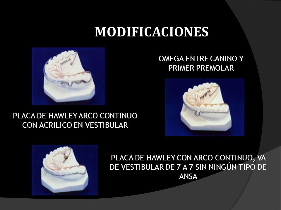 MODIFICACIONES OMEGA ENTRE CANINO Y PRIMER PREMOLAR
