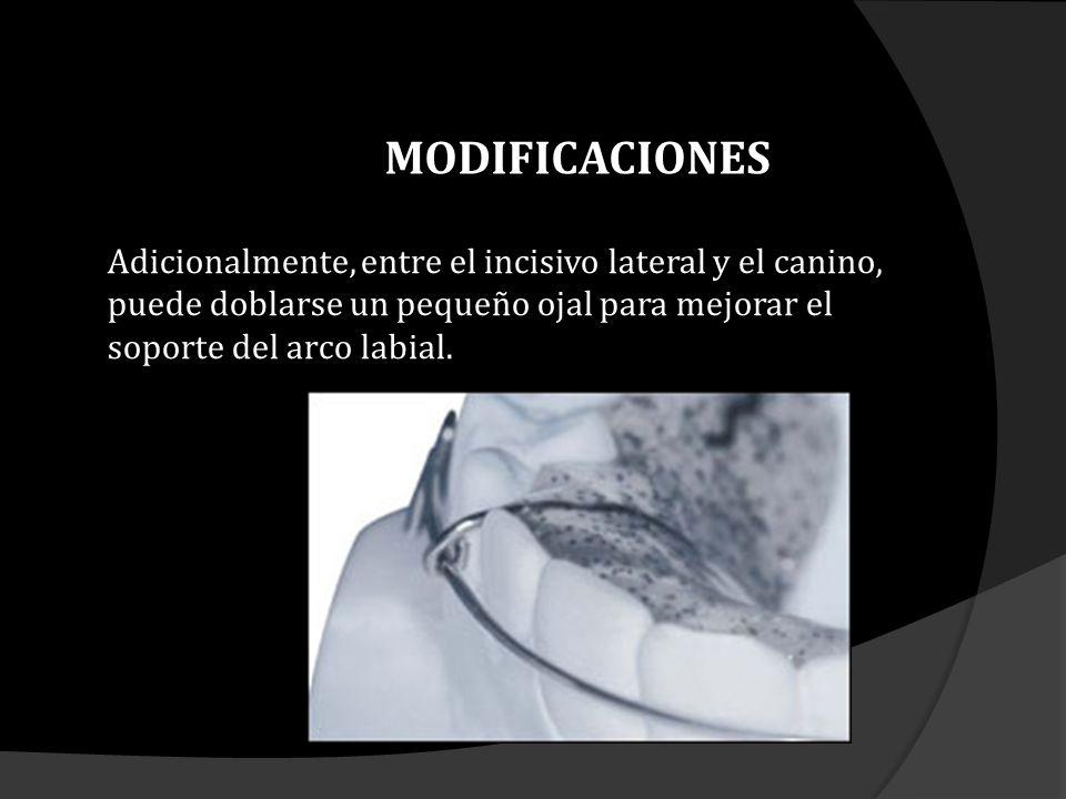 MODIFICACIONES Adicionalmente, entre el incisivo lateral y el canino, puede doblarse un pequeño ojal para mejorar el soporte del arco labial.