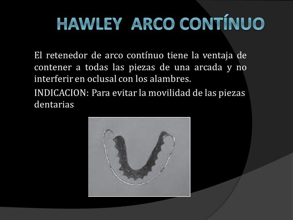 HAWLEY ARCO CONTÍNUO