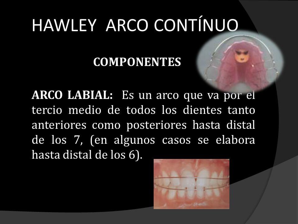 HAWLEY ARCO CONTÍNUO COMPONENTES