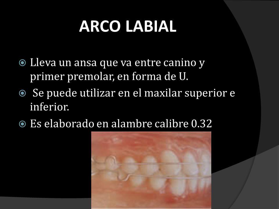 ARCO LABIAL Lleva un ansa que va entre canino y primer premolar, en forma de U. Se puede utilizar en el maxilar superior e inferior.