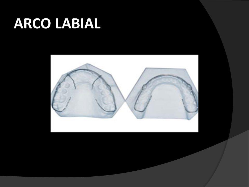 ARCO LABIAL