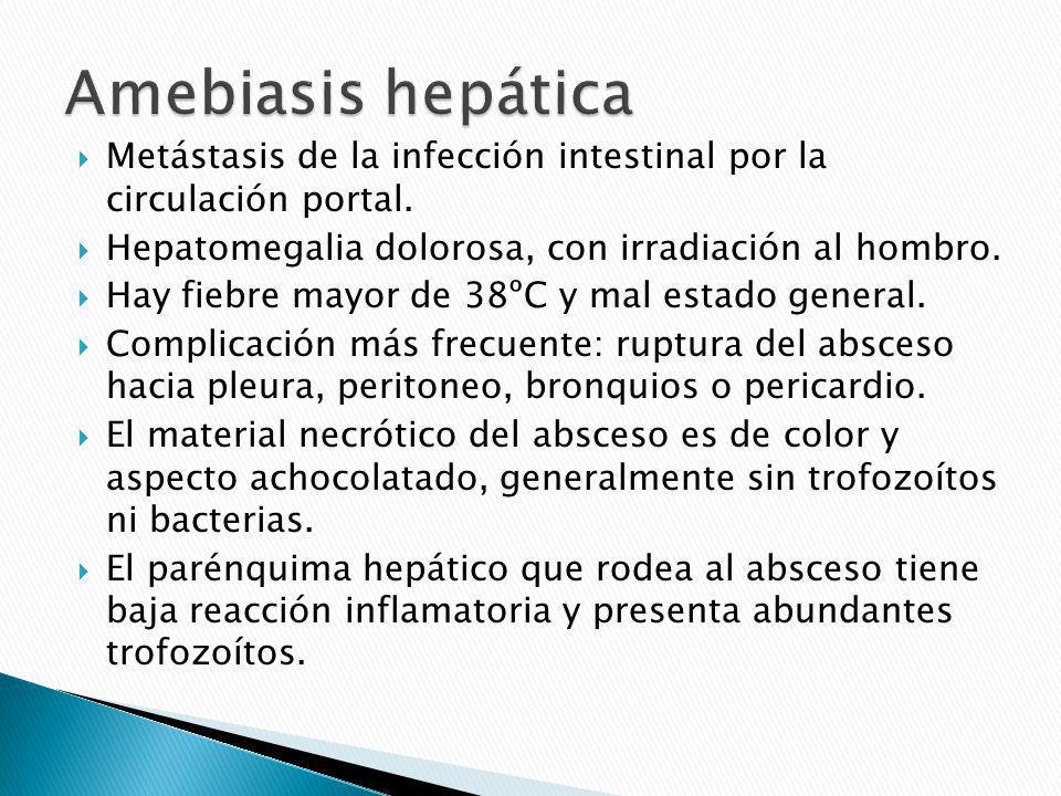 Amebiasis hepática Metástasis de la infección intestinal por la circulación portal. Hepatomegalia dolorosa, con irradiación al hombro.