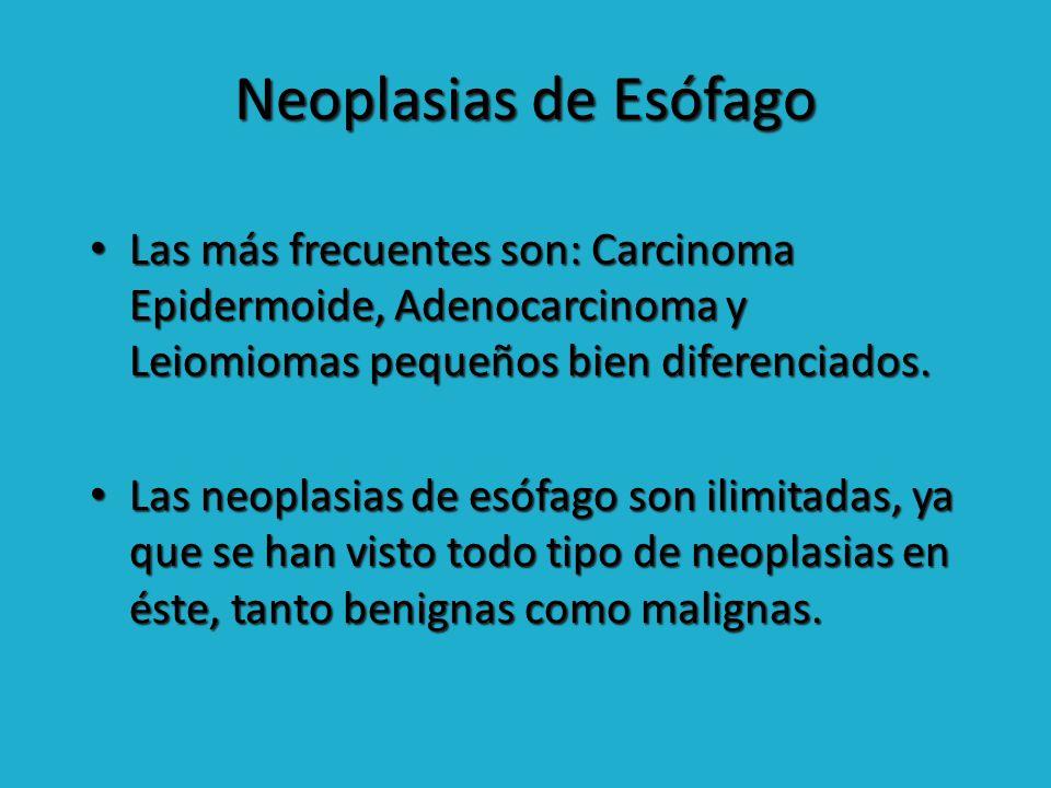 Neoplasias de Esófago Las más frecuentes son: Carcinoma Epidermoide, Adenocarcinoma y Leiomiomas pequeños bien diferenciados.