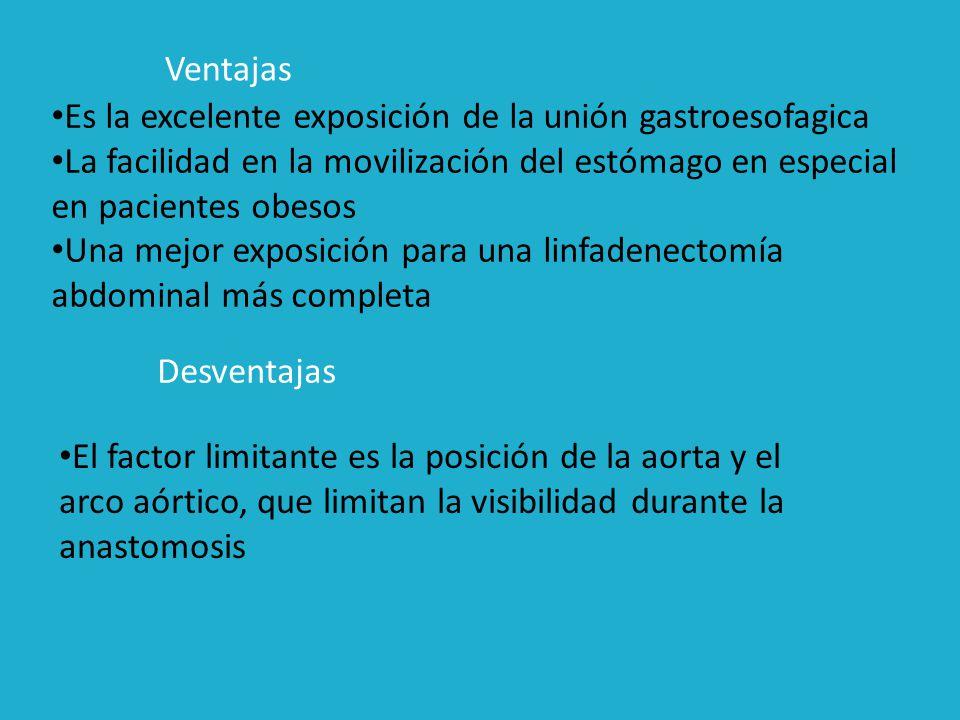 Ventajas Es la excelente exposición de la unión gastroesofagica. La facilidad en la movilización del estómago en especial en pacientes obesos.