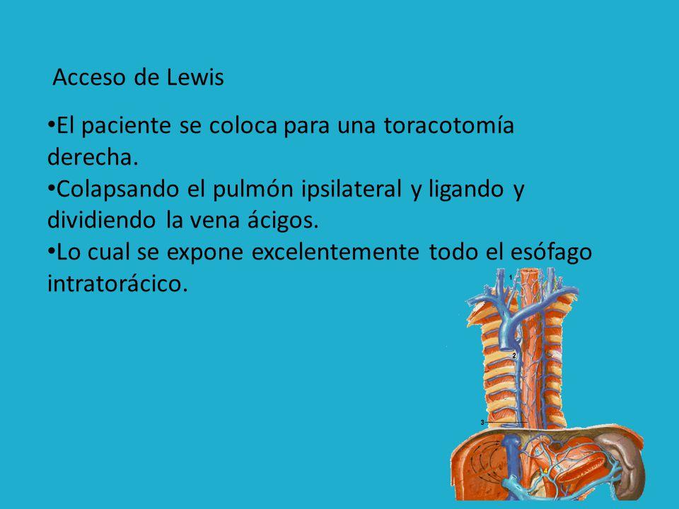 Acceso de Lewis El paciente se coloca para una toracotomía derecha. Colapsando el pulmón ipsilateral y ligando y dividiendo la vena ácigos.