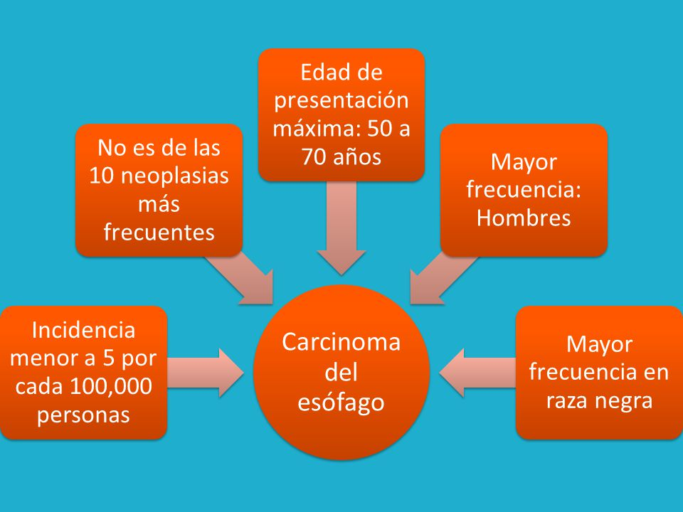 Carcinoma del esófago Incidencia menor a 5 por cada 100,000 personas