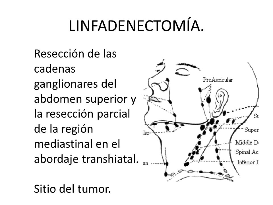 LINFADENECTOMÍA.