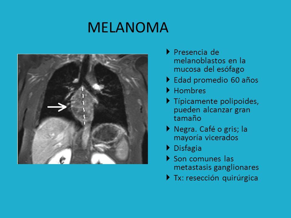 MELANOMA MELANOMA Presencia de melanoblastos en la mucosa del esófago