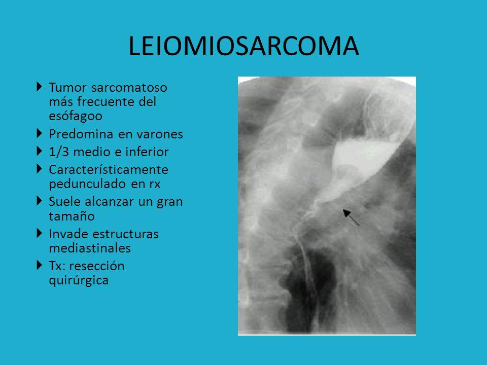 LEIOMIOSARCOMA Tumor sarcomatoso más frecuente del esófagoo
