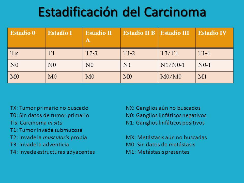 Estadificación del Carcinoma