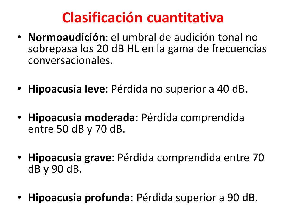 Clasificación cuantitativa
