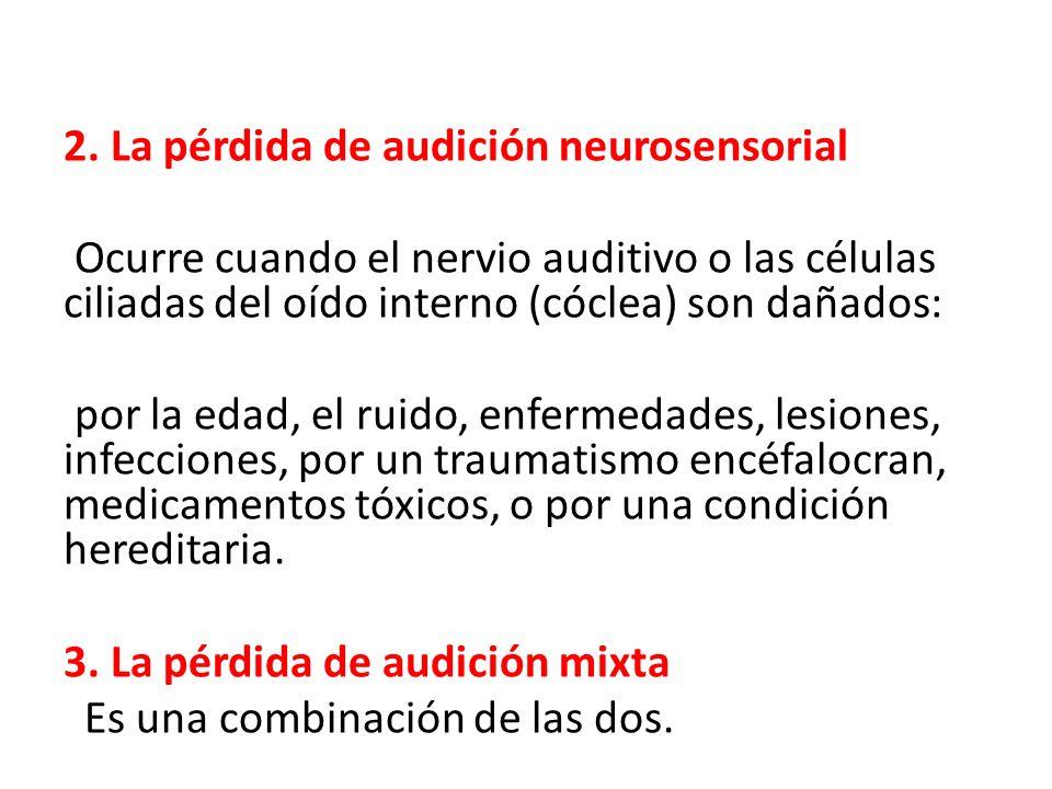 2. La pérdida de audición neurosensorial