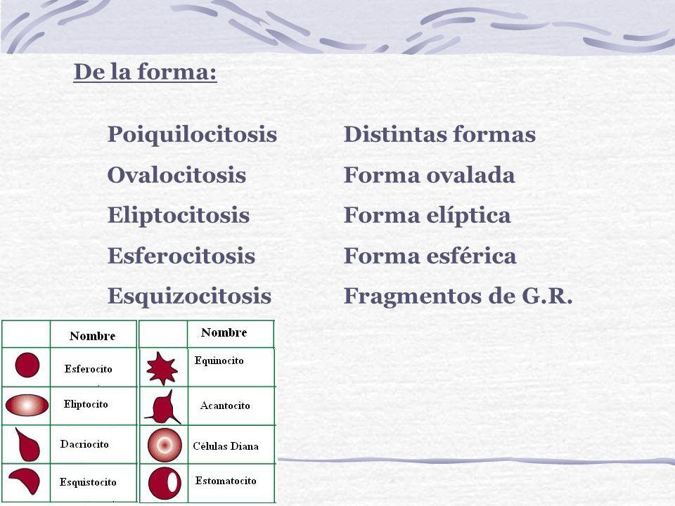 De la forma: Poiquilocitosis Distintas formas. Ovalocitosis Forma ovalada. Eliptocitosis Forma elíptica.