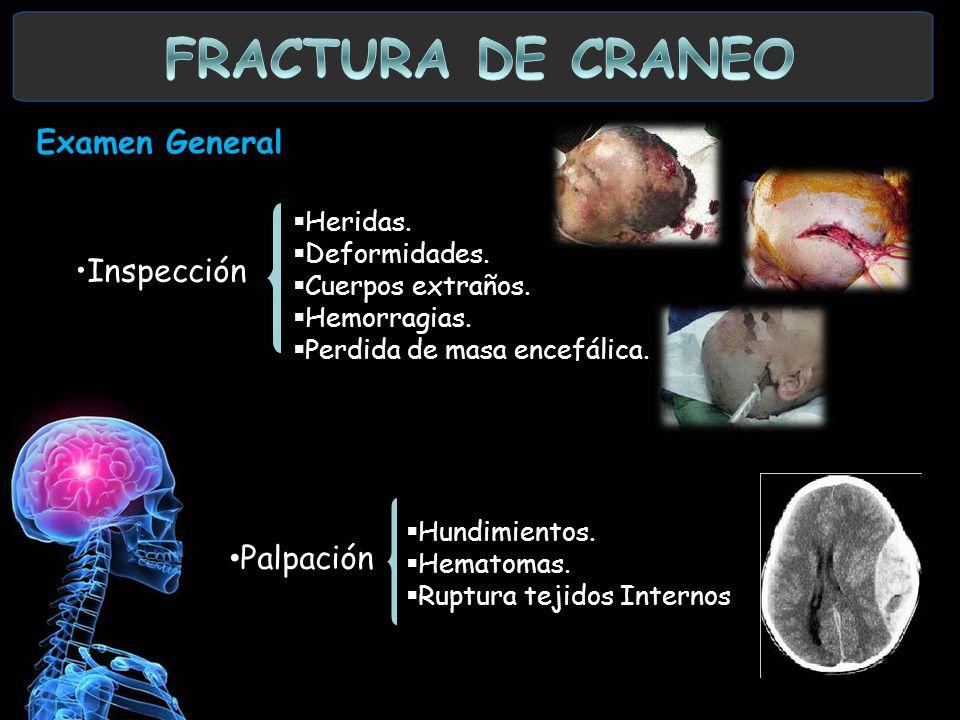 FRACTURA DE CRANEO Examen General. Inspección Palpación Heridas.