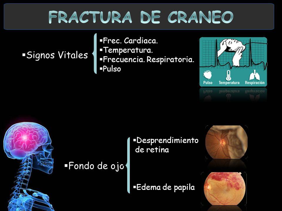 FRACTURA DE CRANEO Signos Vitales Fondo de ojo Frec. Cardiaca.