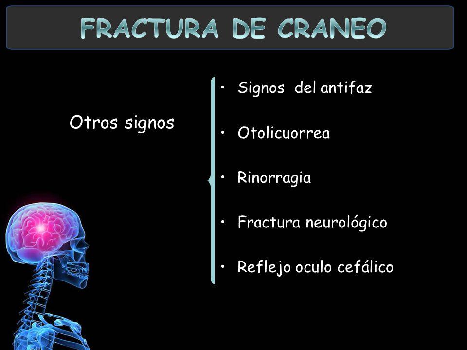 FRACTURA DE CRANEO Otros signos Signos del antifaz Otolicuorrea